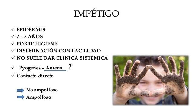 IMPÉTIGO NO BULLOSO (contagioso-microvesiculoso)  > 70 %  ZONAS DE TRAUMATISMO MINIMOS  PAPULAS ERITEMATOSA VESICULA BA...