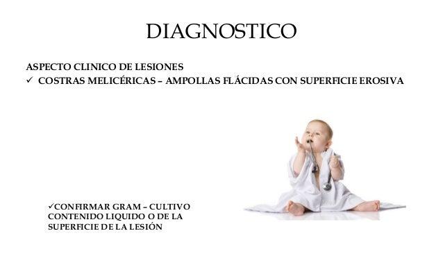 DIAGNÓSTICO DIFERENCIAL IMPETIGO NO AMPOLLOSO :  VHS  TIÑA DE PIEL LAMPIÑA  ECZEMA AGUDO