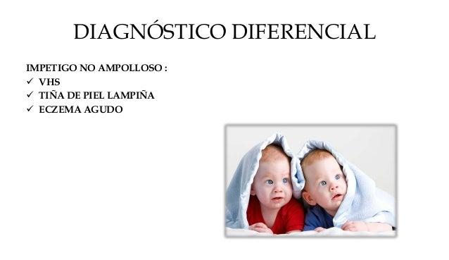IMPETIGO AMPOLLOSO :  NECROLISIS EPIDÉRMICA TOXICA POR FÁRMACOS  PICADURAS CON REACCIÓN AMPOLLOSA  EPIDERMOLISIS AMPOLL...