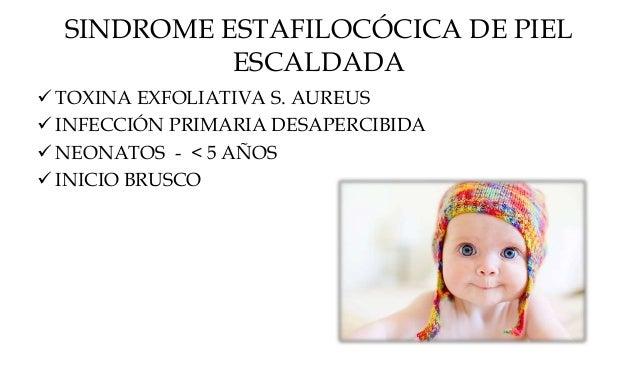 """24-48 h AMPOLLAS FLÁCIDAS – FRAGILES EROSIONES HUMEDA – ROJA – BRILLANTE APARIENCIA """"QUEMADURA"""" SIGNO DE NIKOLSKY"""