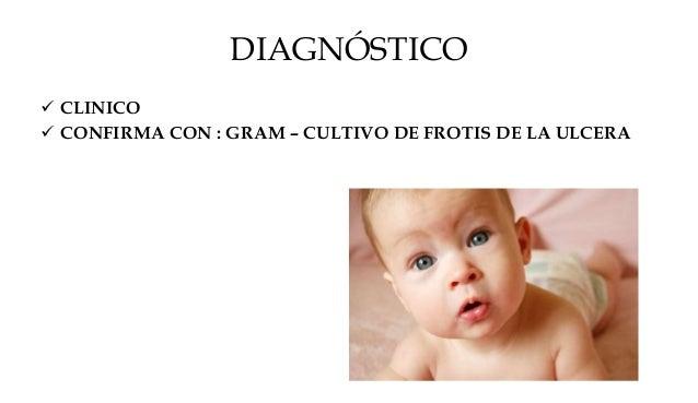 TRATAMIENTO  ELIMINACIÓN COSTRAS (CLORHEXIDINA)  POMADA ANTIBIOTICA DISMINUIR CONTAGIO  ANTIBIOTICO SISTEMICOS • ACIDO ...