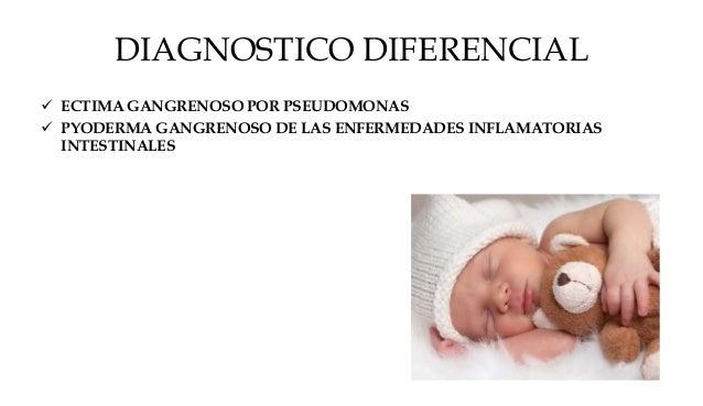 ENFERMEDAD PERIANAL ESTREPTOCÓCICA  > 5 AÑOS  ERITEMATOSA BRILLANTE  BIEN DELIMITADA  PRURITO – DOLOR ANAL – ESTREÑIMI...