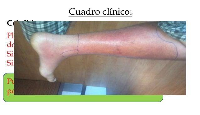 Diagnóstico: Erisipela: Clínico. Hmg: leucocitosis; cultivo de lesión por PAAF: positivo 5-40%; biopsia en sacabocados: 20...