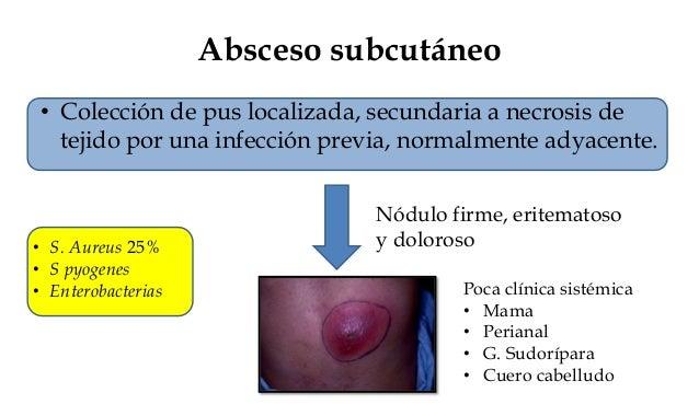 Fascitis necrotizante • Es una infección aguda y rápidamente progresiva del tejido celular subcutáneo, con un elevada morb...