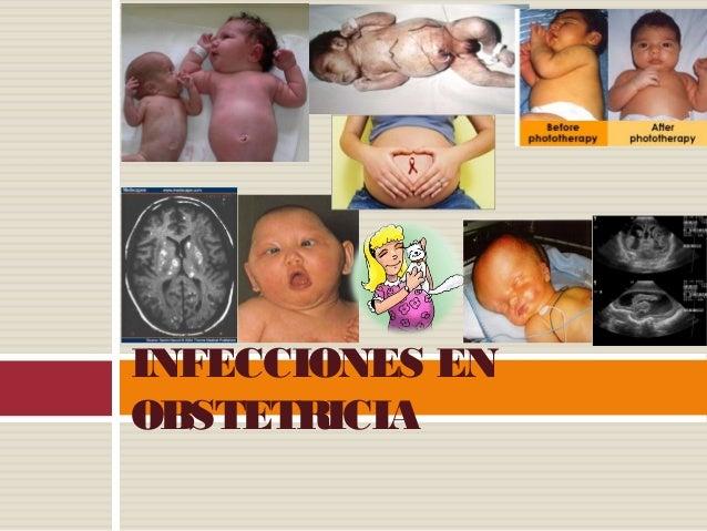 INFECCIONES ENOBSTETRICIA