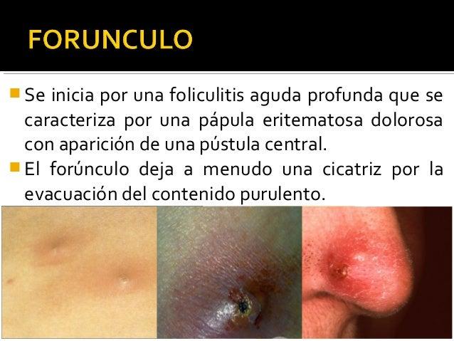Infecciones Bacterianas Y Micosis En Piel