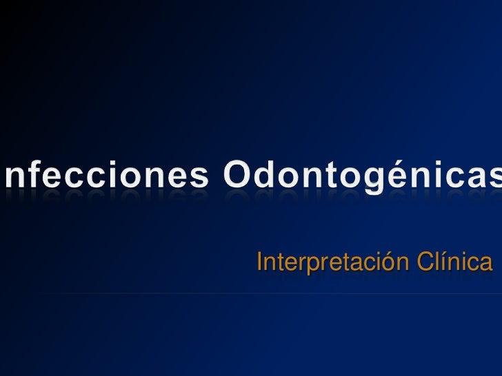 Infecciones Odontogénicas<br />Interpretación Clínica<br />