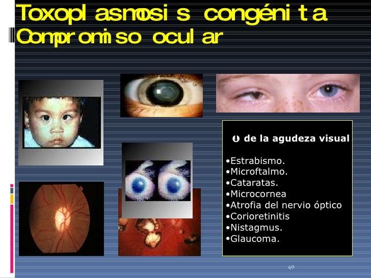 Toxoplasmosis congénita Compromiso ocular <ul><li>   de la agudeza visual </li></ul><ul><li>Estrabismo. </li></ul><ul><li...