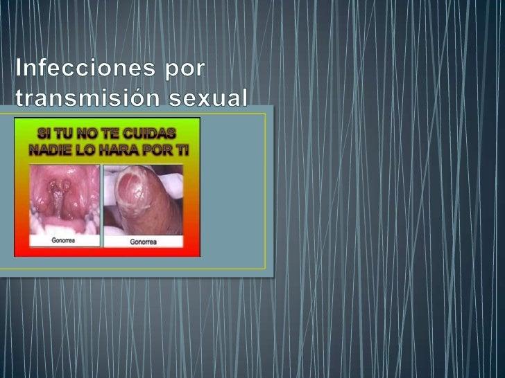 • Las infecciones de transmisión sexual (ITS) (también enfermedades  de transmisión sexual (ETS), antes enfermedades venér...