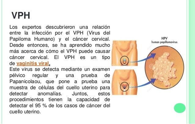 CAUSAS Los tipos de VPH asociados con las infecciones vaginales son de transmisión sexual, principalmente a través del con...