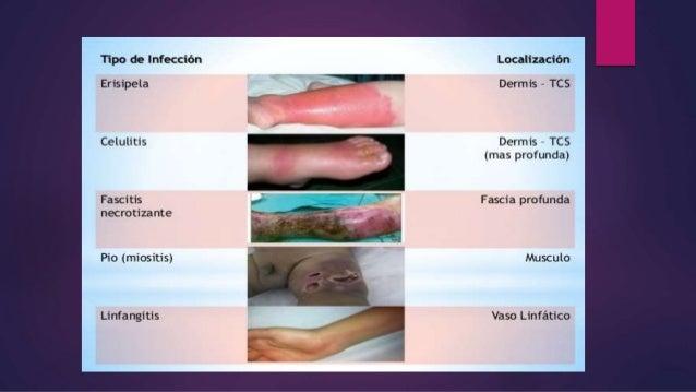 INFECCIÓN DE TEJIDOS BLANDOS. Slide 2
