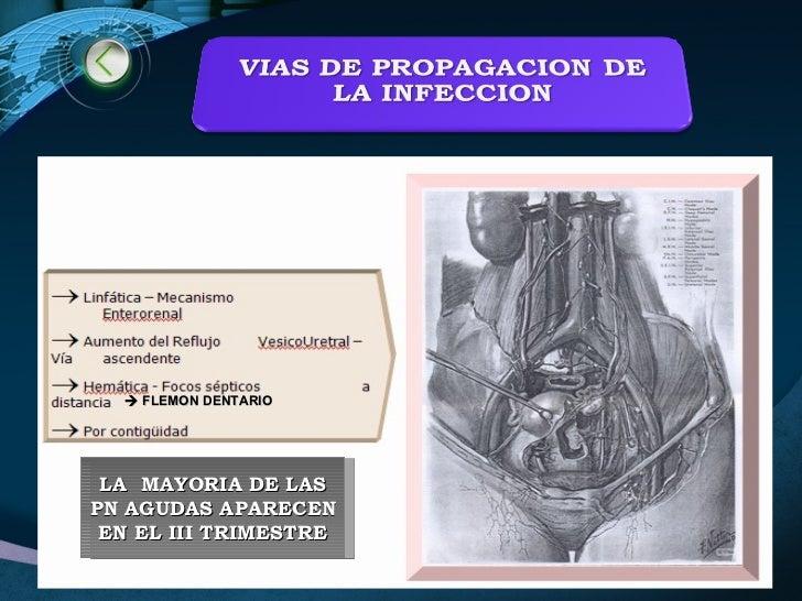 LA  MAYORIA DE LAS PN AGUDAS APARECEN EN EL III TRIMESTRE    FLEMON DENTARIO