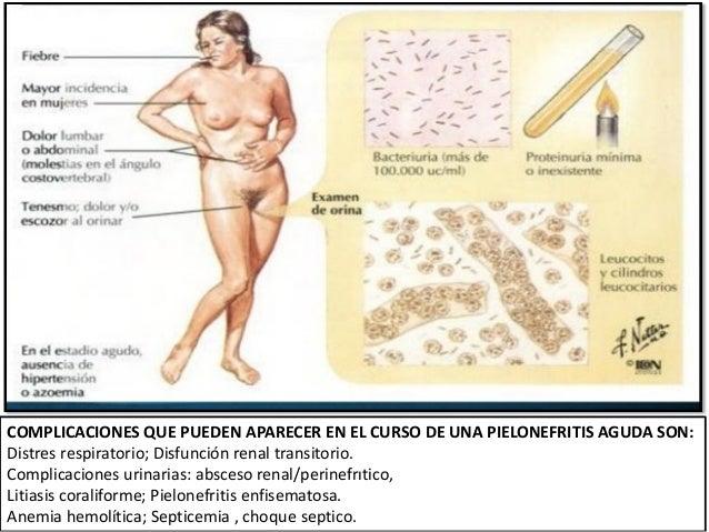 La hernia intervertebral del departamento lumbar el tratamiento odessa