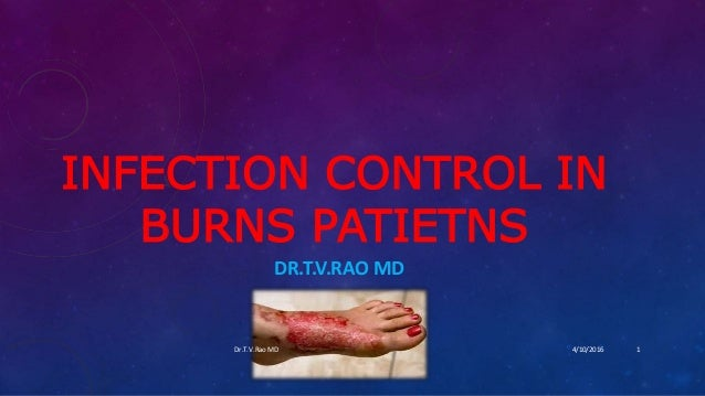 INFECTION CONTROL IN BURNS PATIETNS DR.T.V.RAO MD 4/10/2016Dr.T.V.Rao MD 1