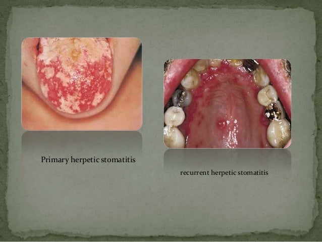 Infection of oral mucosa  Infection of or...