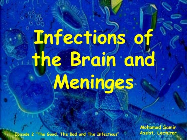 "Infections of the Brain and Meninges Mohamed Samir Assist. LecturerEpisode 2 ""The Good, The Bad and The Infectious"""