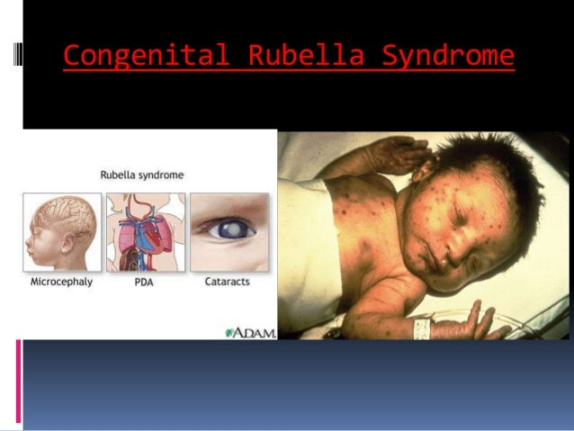 dermatological infections in newborn drpadmesh