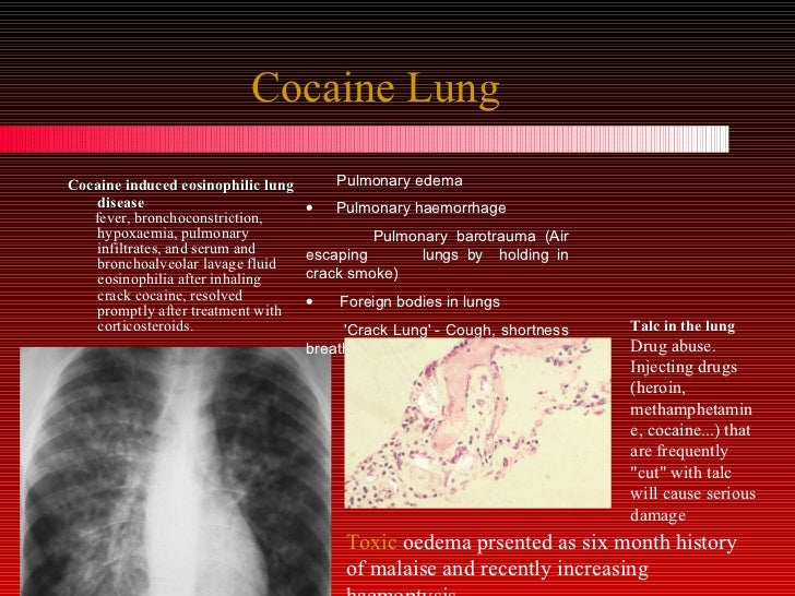 crack lung pictures