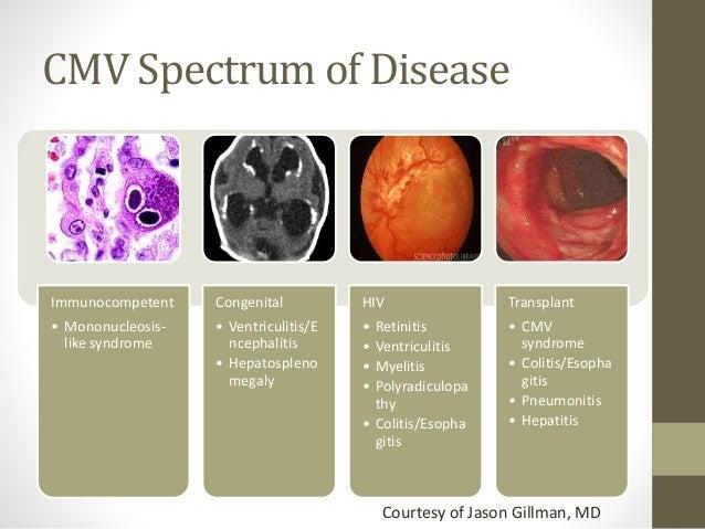 cmv pneumonitis steroids