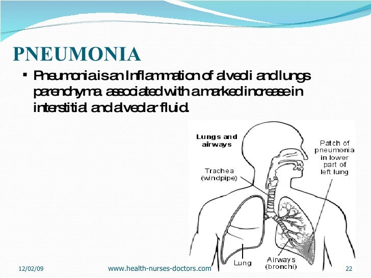 PNEUMONIA <ul><li>Pneumonia is an Inflammation of alveoli and lungs parenchyma  associated with a marked increase in inter...