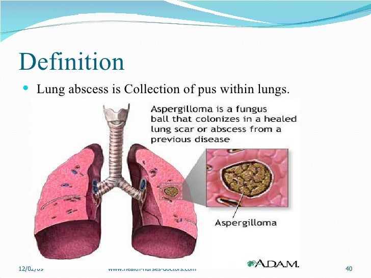 Definition <ul><li>Lung abscess is Collection of pus within lungs. </li></ul>06/07/09 www.health-nurses-doctors.com