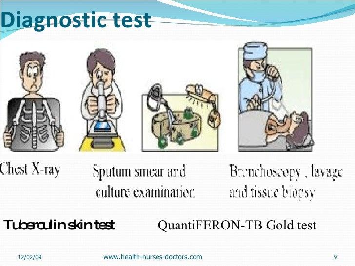 Diagnostic test <ul><li>Tuberculin skin test  QuantiFERON-TB Gold test </li></ul>06/07/09 www.health-nurses-doctors.com