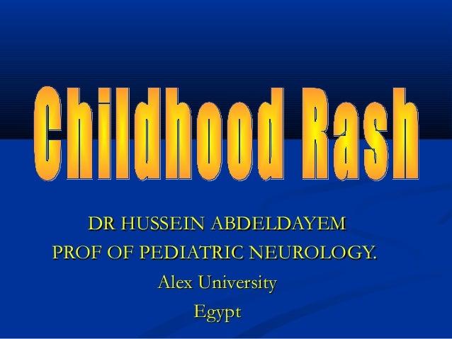 DR HUSSEIN ABDELDAYEMPROF OF PEDIATRIC NEUROLOGY.          Alex University              Egypt