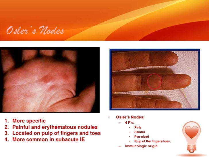 infective endocarditis krm
