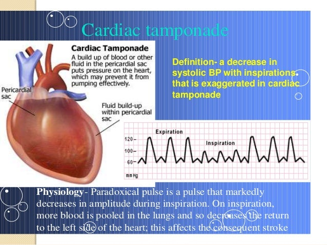 Indocin Dose For Pericarditis