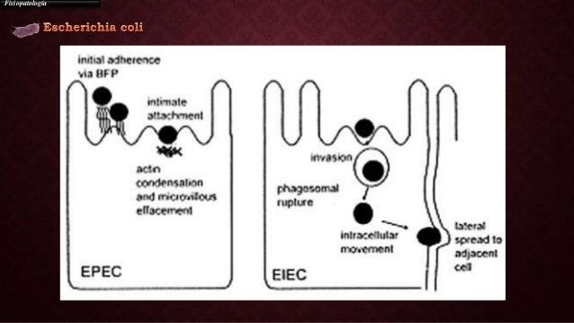 Los síntomas de las lombrices la bilirrubina