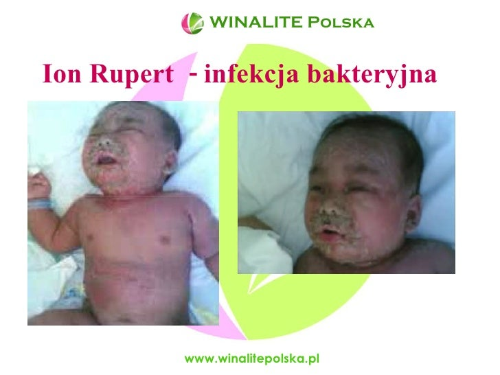 Ion Rupert  - infekcja bakteryjna www.winalitepolska.pl WINALITE Polska