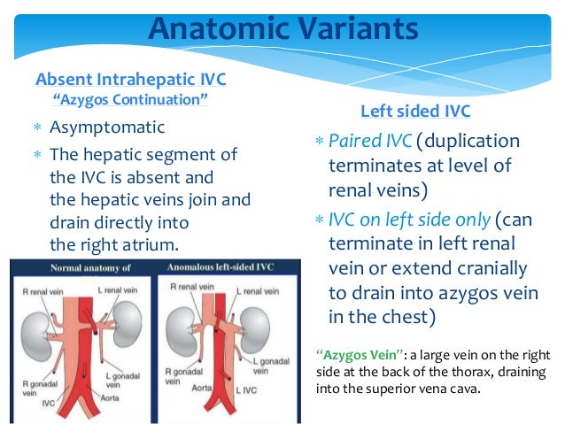  Asymptomatic  The hepatic segment of the IVC is absent and the hepatic veins join and drain directly into the right atr...