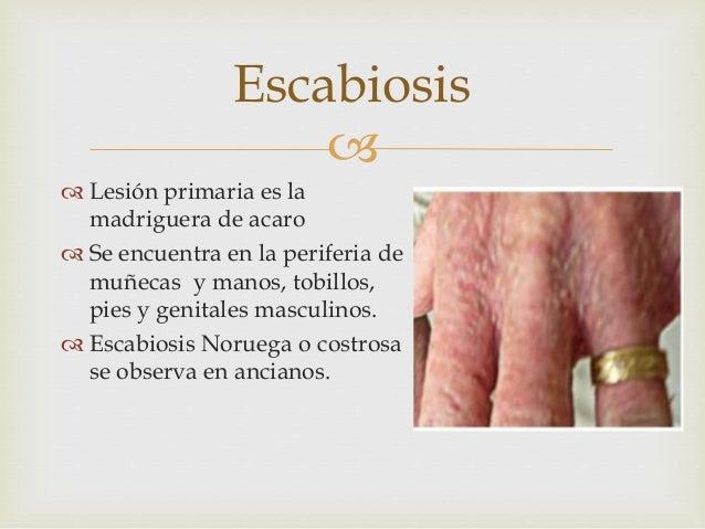 Por qué he caído enfermo de la psoriasis