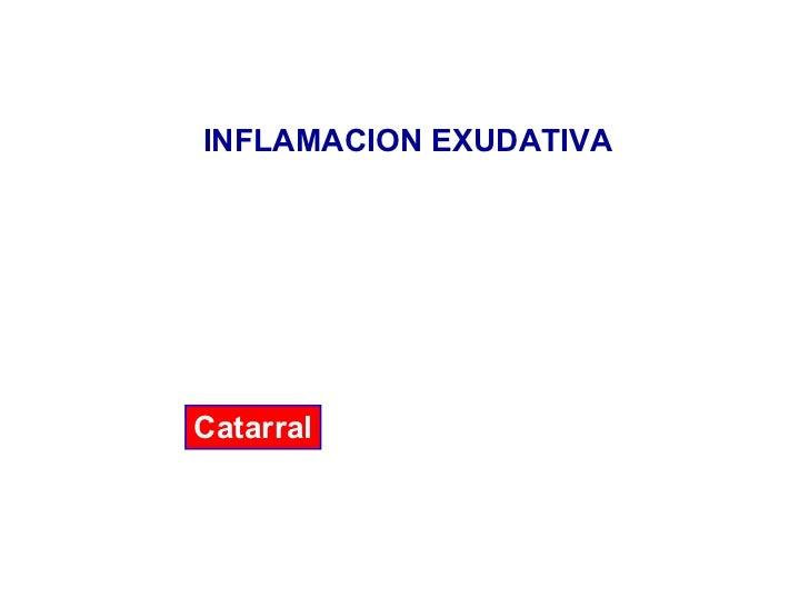 INFLAMACION EXUDATIVA Catarral
