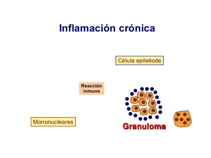Inflamación crónica Célula epiteliode Reacción inmune Granuloma Mononucleares