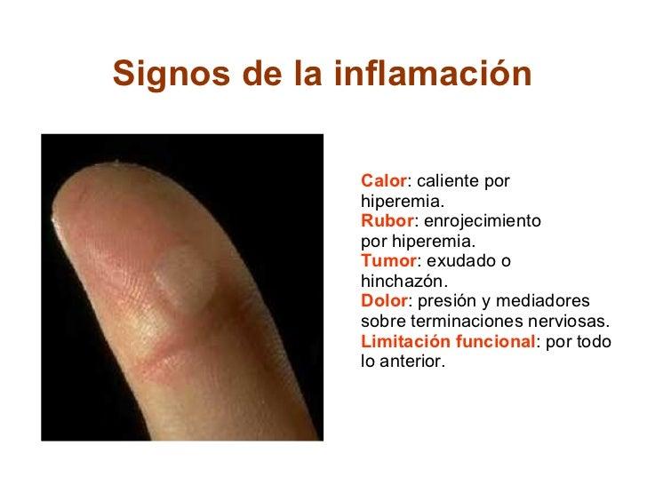 Signos de la inflamación  Calor : caliente por hiperemia. Rubor : enrojecimiento por hiperemia. Tumor : exudado o hinchazó...
