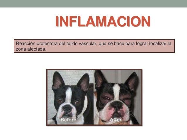 INFLAMACION Reacción protectora del tejido vascular, que se hace para lograr localizar la zona afectada.
