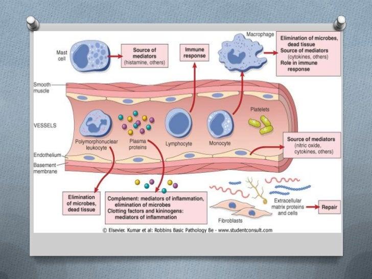 La operación de la desaparición de la vena a la tromboflebitis