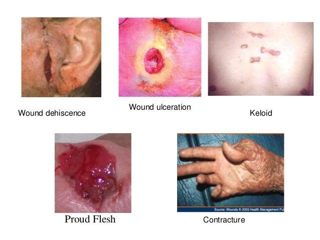 Inflammation and repair