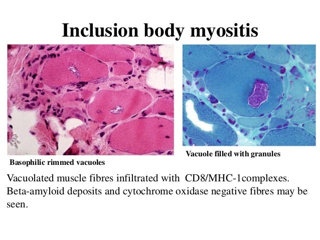 inclusion body myositis market global