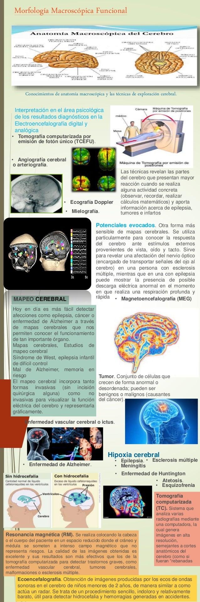 Infografia neurociencias