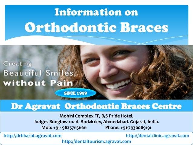 Information on  Orthodontic Braces  Since 1999  Dr Agravat Orthodontic Braces Centre Mohini Complex FF, B/S Pride Hotel, J...
