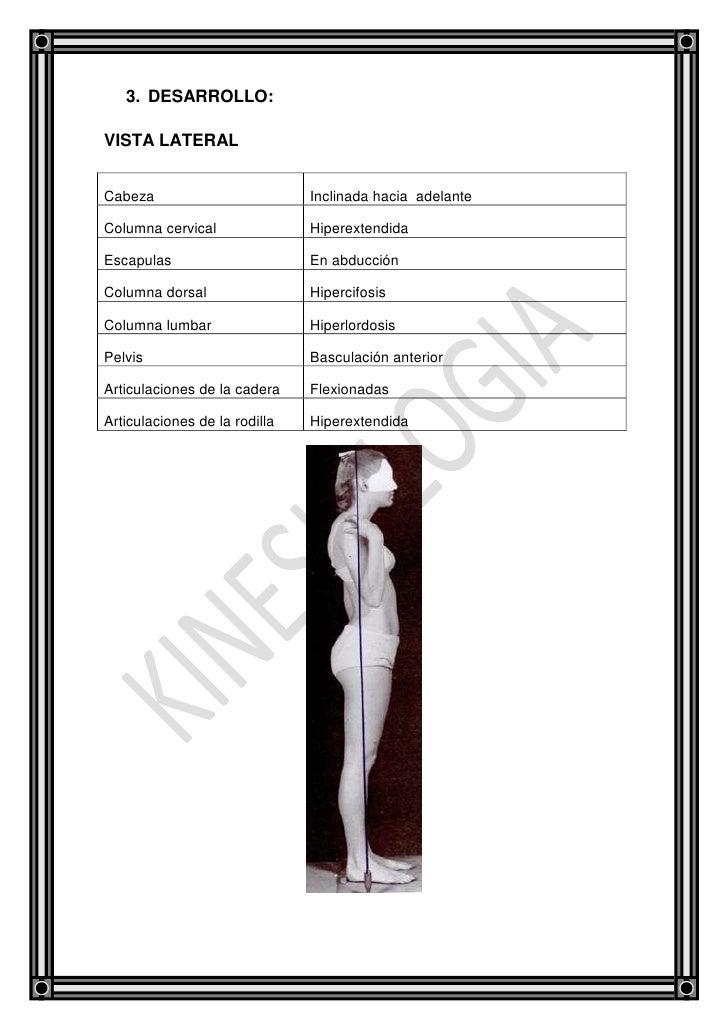 Informe de la práctica de postura vista lateral Slide 3