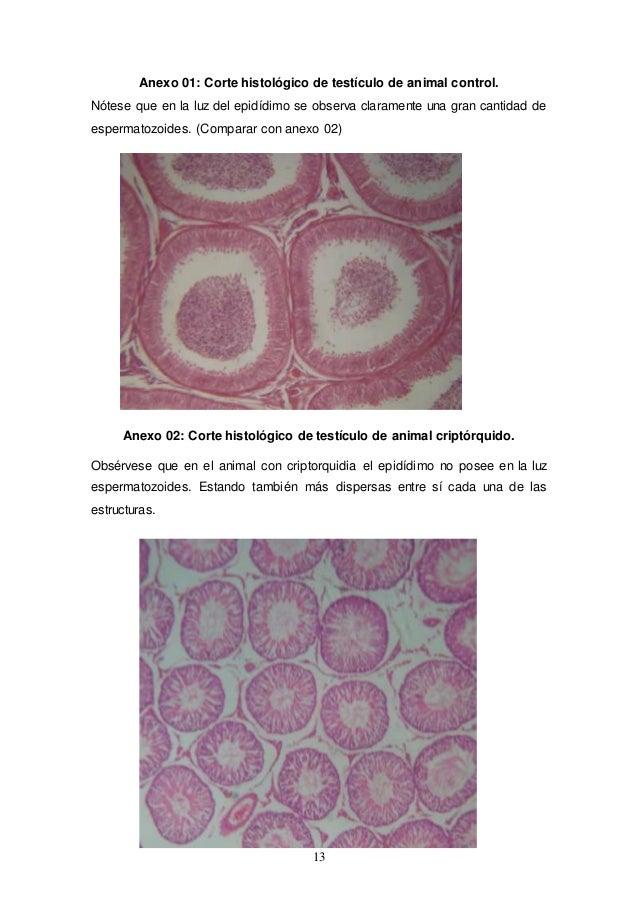 Informe sist reproductor del macho