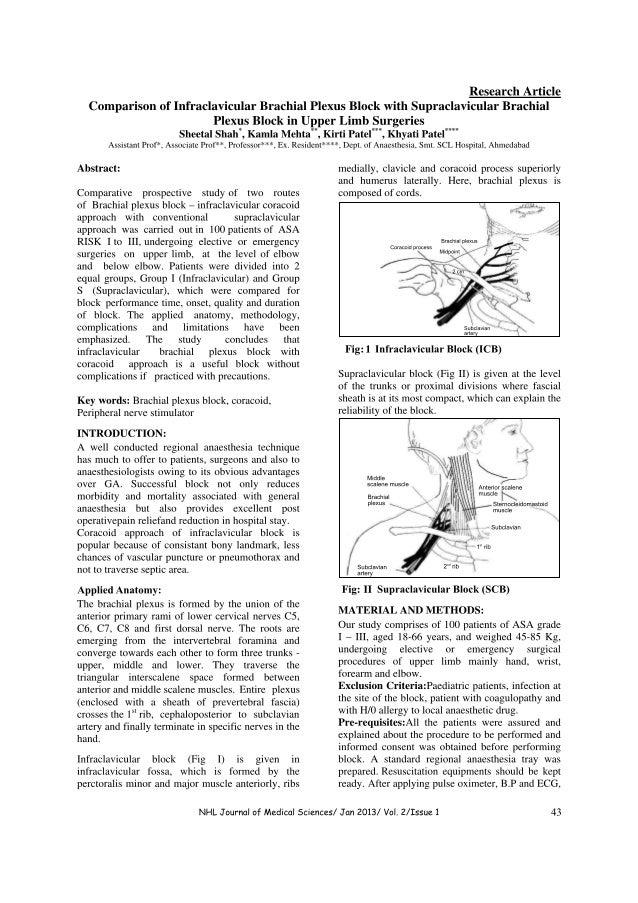 Infraclavicular vs supraclavicular