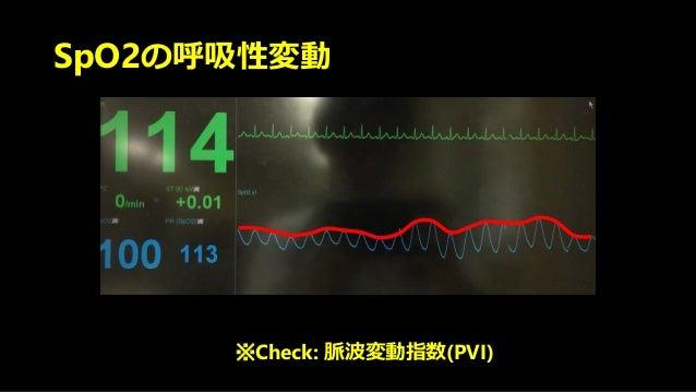 SpO2の呼吸性変動 ※Check: 脈波変動指数(PVI)