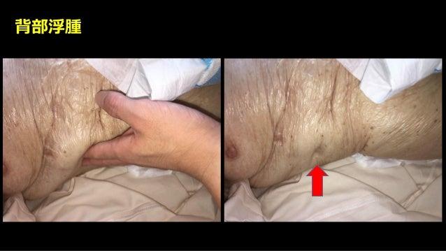 症例② 86歳男性 160cm, 50kg 10日前に転倒し, 左大腿骨頸部骨折のため, 1週間前に骨頭置換術が行われたが, 術 後数日は元気だったが, 徐々に食思不振が出現した. バイタルは安定. 頸静脈怒張なし, 背部にやや浮腫あり, 尿量...