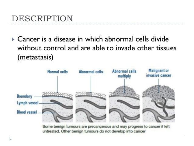 Cancer disease Slide 3