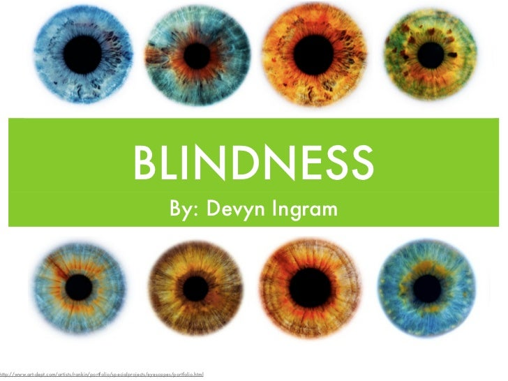 BLINDNESS                                                                          By: Devyn Ingramhttp://www.art-dept.com...