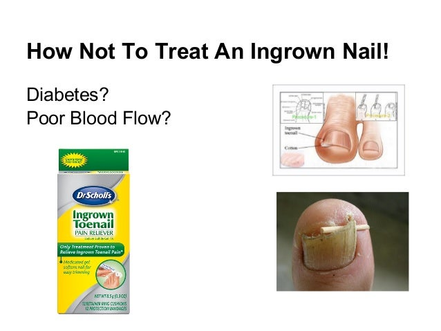Proper Treatment Of Ingrown Toenail Dr Donald Pelto